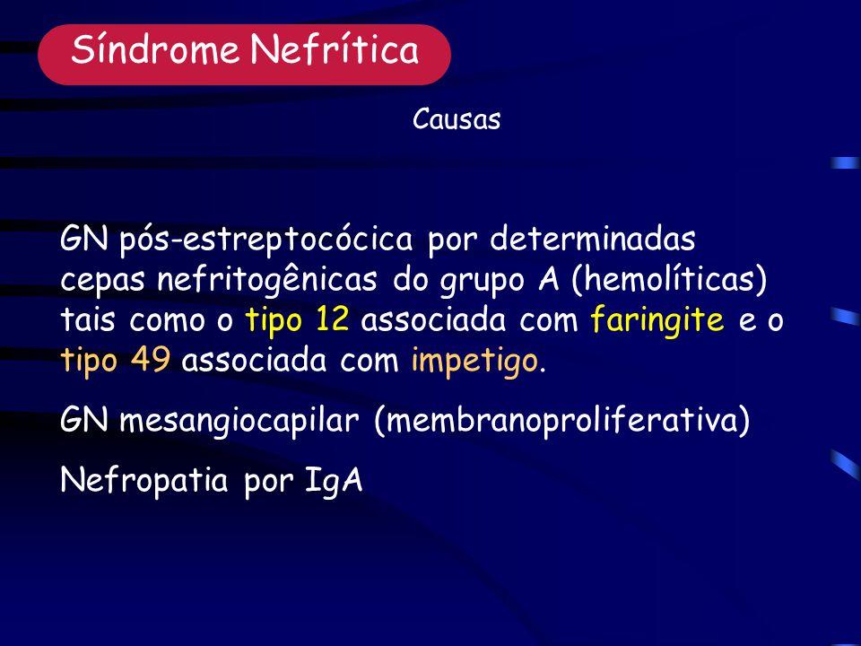 Síndrome Nefrítica Causas.
