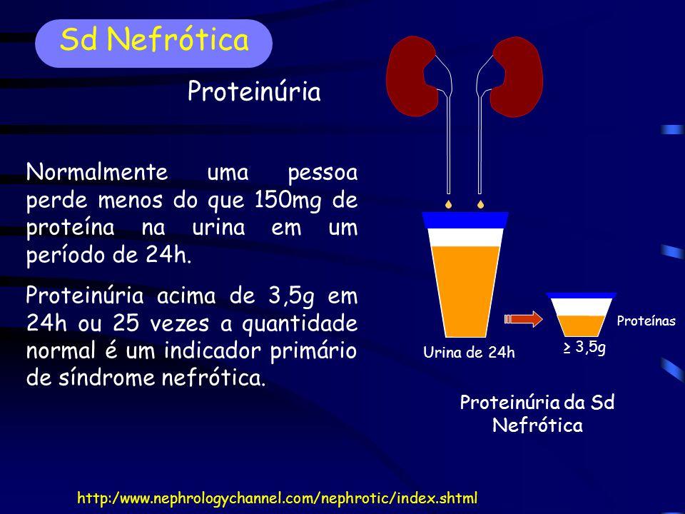 Sd Nefrótica Proteinúria