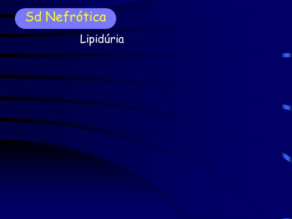 Sd Nefrótica Lipidúria