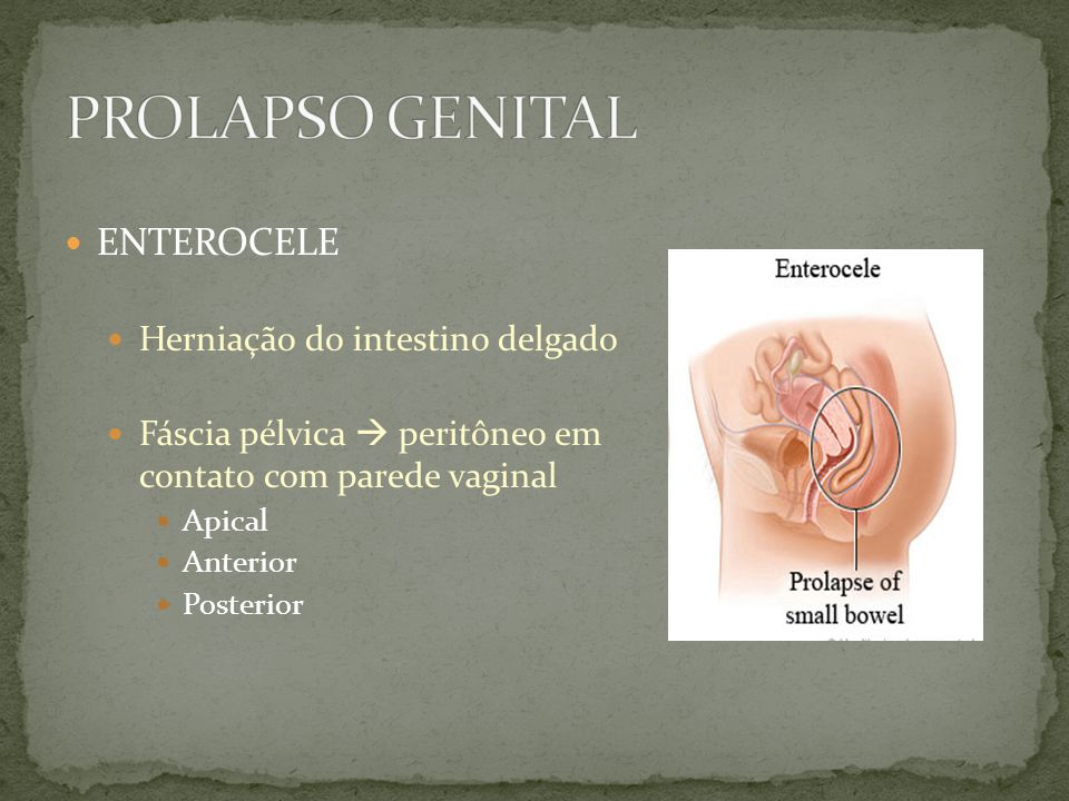 Prolapso Genital ENTEROCELE Herniação do intestino delgado