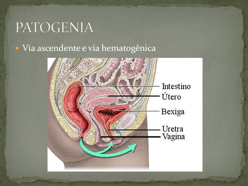 PATOGENIA Via ascendente e via hematogênica