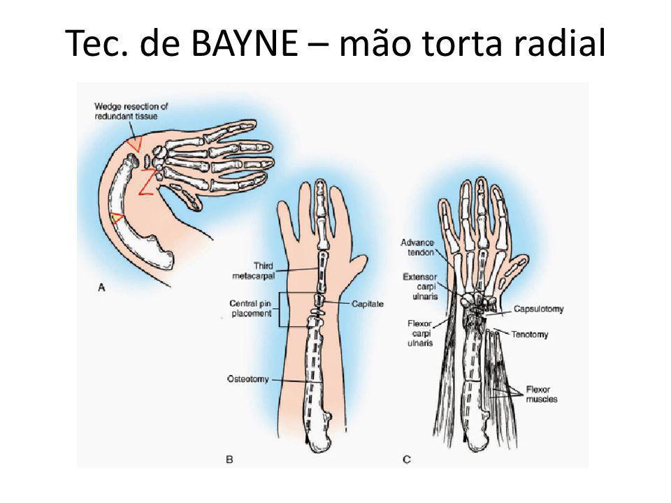 Tec. de BAYNE – mão torta radial
