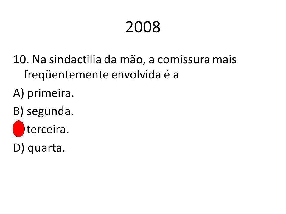 2008 10. Na sindactilia da mão, a comissura mais freqüentemente envolvida é a A) primeira.