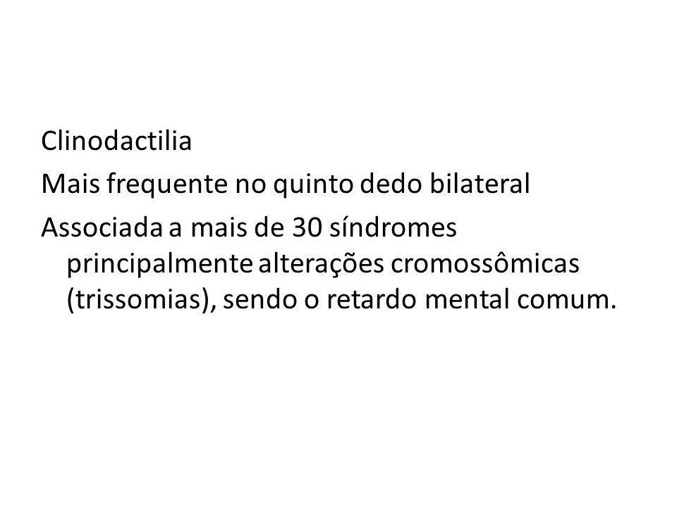 Clinodactilia Mais frequente no quinto dedo bilateral Associada a mais de 30 síndromes principalmente alterações cromossômicas (trissomias), sendo o retardo mental comum.