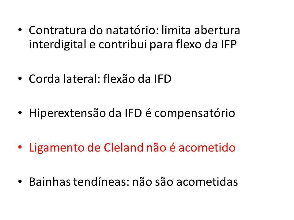 Contratura do natatório: limita abertura interdigital e contribui para flexo da IFP