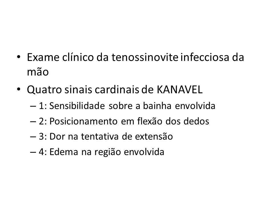 Exame clínico da tenossinovite infecciosa da mão