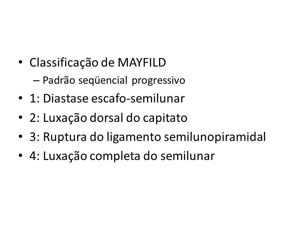 Classificação de MAYFILD 1: Diastase escafo-semilunar