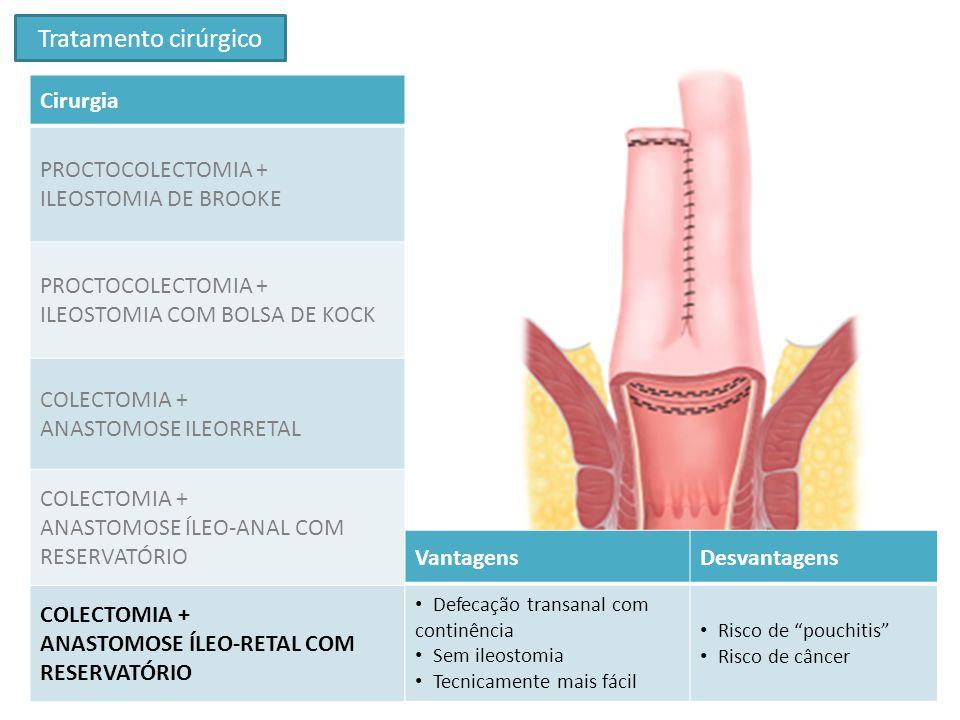 Tratamento cirúrgico Cirurgia PROCTOCOLECTOMIA + ILEOSTOMIA DE BROOKE