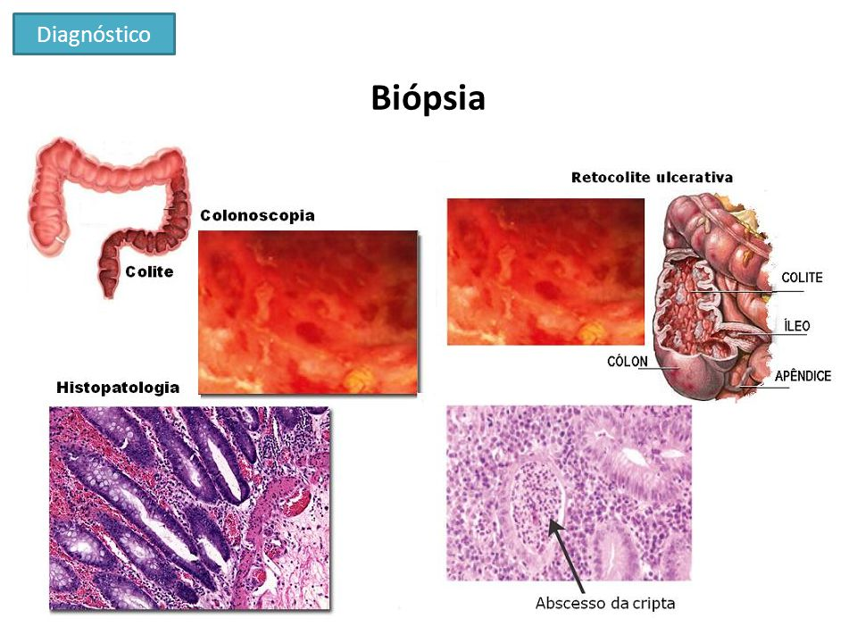 Diagnóstico Biópsia