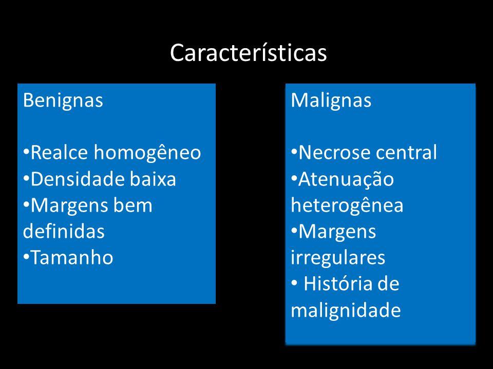 Características Benignas Realce homogêneo Densidade baixa