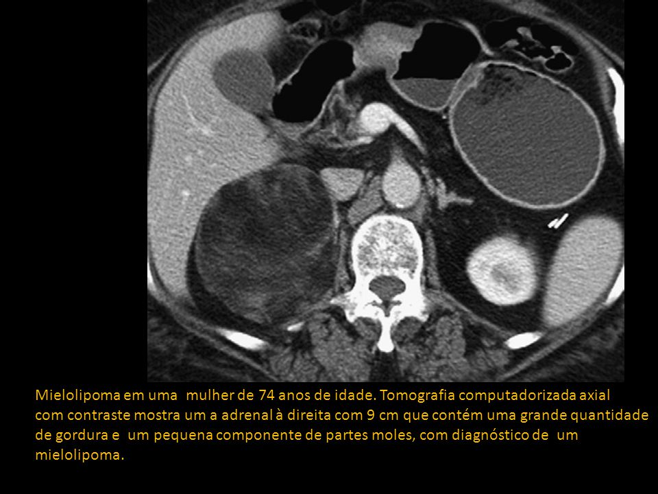 Mielolipoma em uma mulher de 74 anos de idade