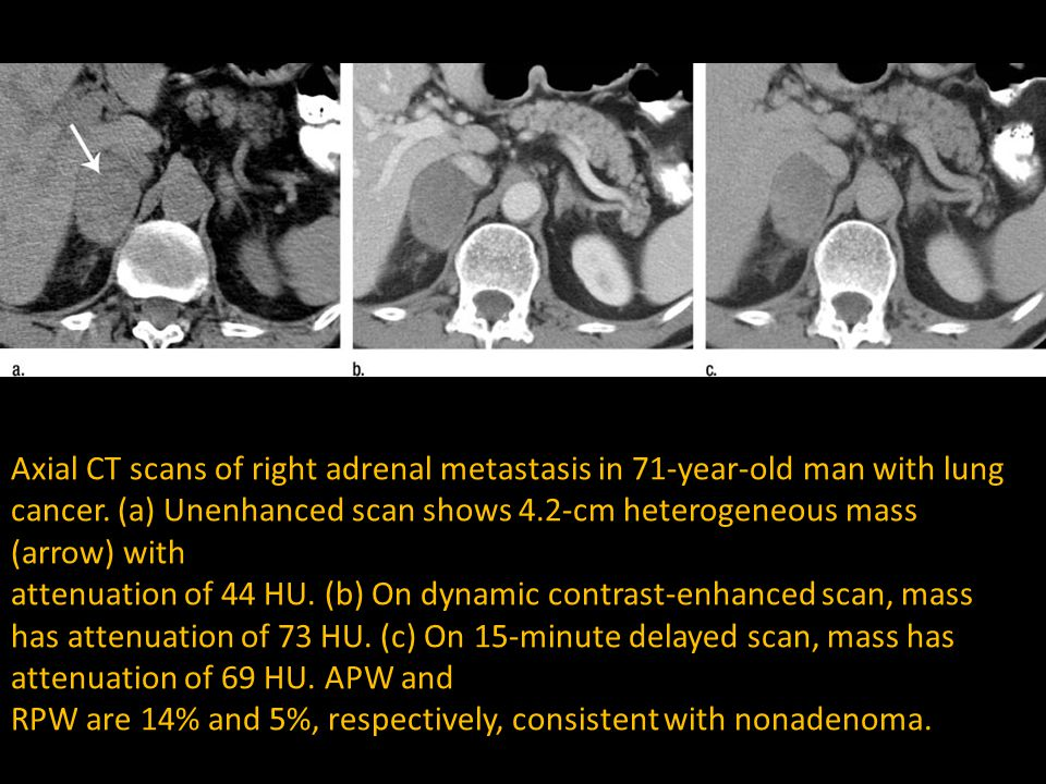 Axial CT scans of right adrenal metastasis in 71-year-old man with lung cancer. (a) Unenhanced scan shows 4.2-cm heterogeneous mass (arrow) with