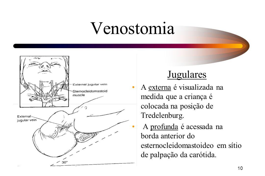 Venostomia Jugulares. A externa é visualizada na medida que a criança é colocada na posição de Tredelenburg.