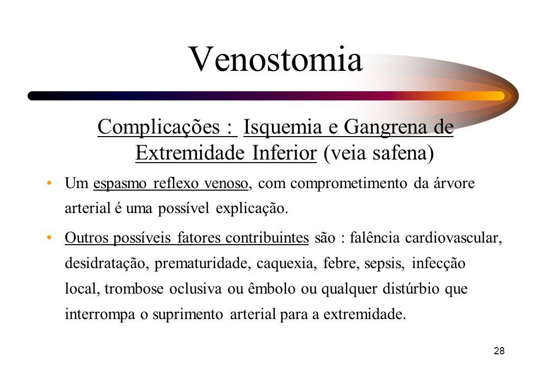 Venostomia Complicações : Isquemia e Gangrena de Extremidade Inferior (veia safena)