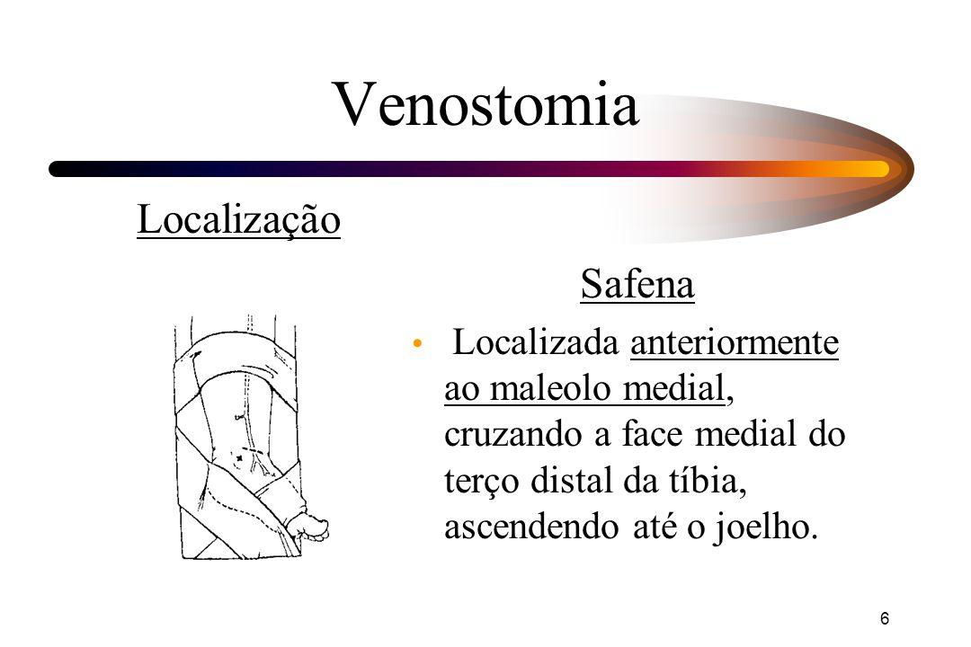 Venostomia Localização Safena