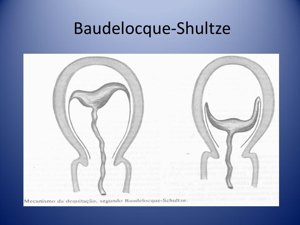Baudelocque-Shultze