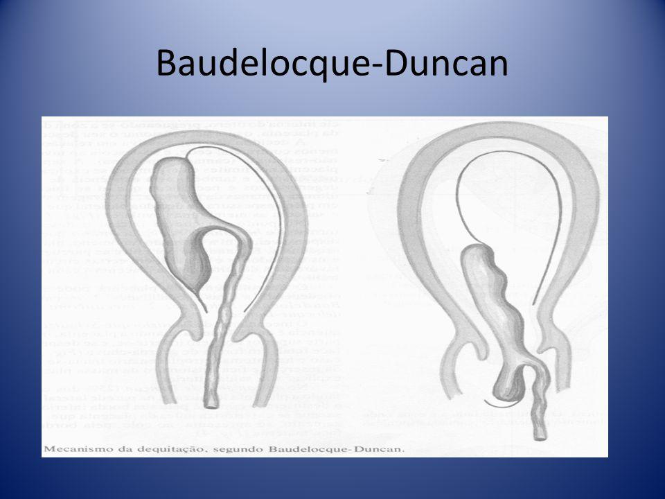 Baudelocque-Duncan
