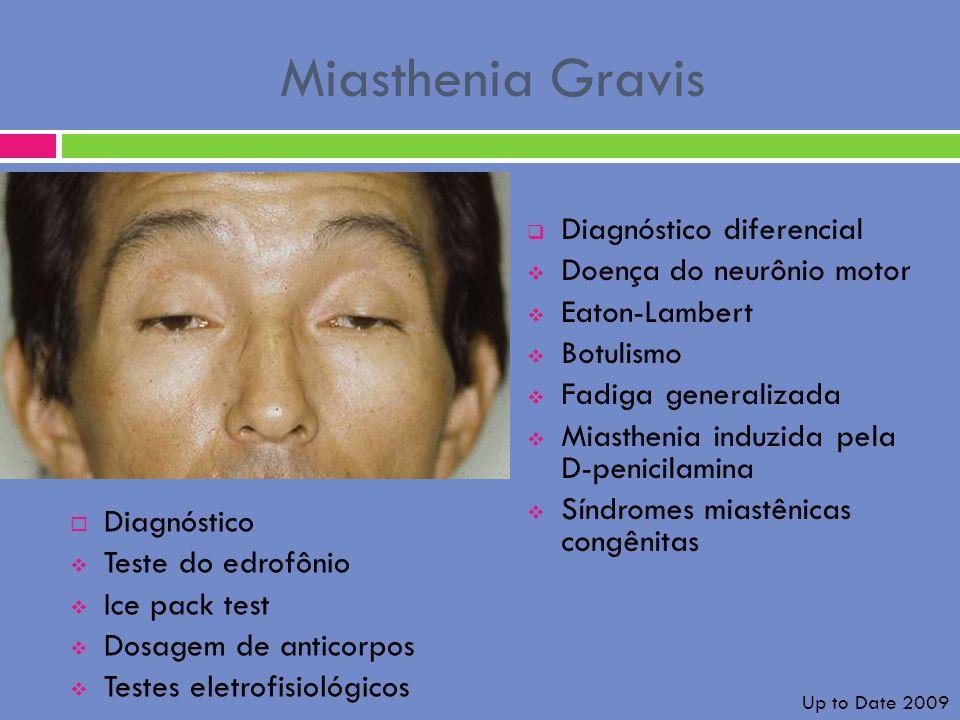 Miasthenia Gravis Diagnóstico diferencial Doença do neurônio motor
