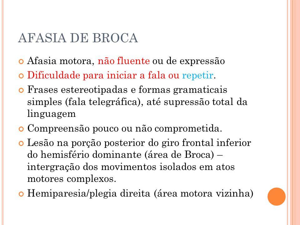 AFASIA DE BROCA Afasia motora, não fluente ou de expressão