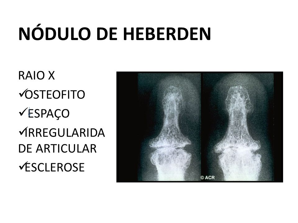 NÓDULO DE HEBERDEN RAIO X OSTEOFITO ESPAÇO IRREGULARIDADE ARTICULAR