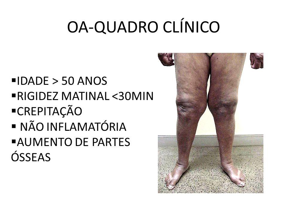 OA-QUADRO CLÍNICO IDADE > 50 ANOS RIGIDEZ MATINAL <30MIN