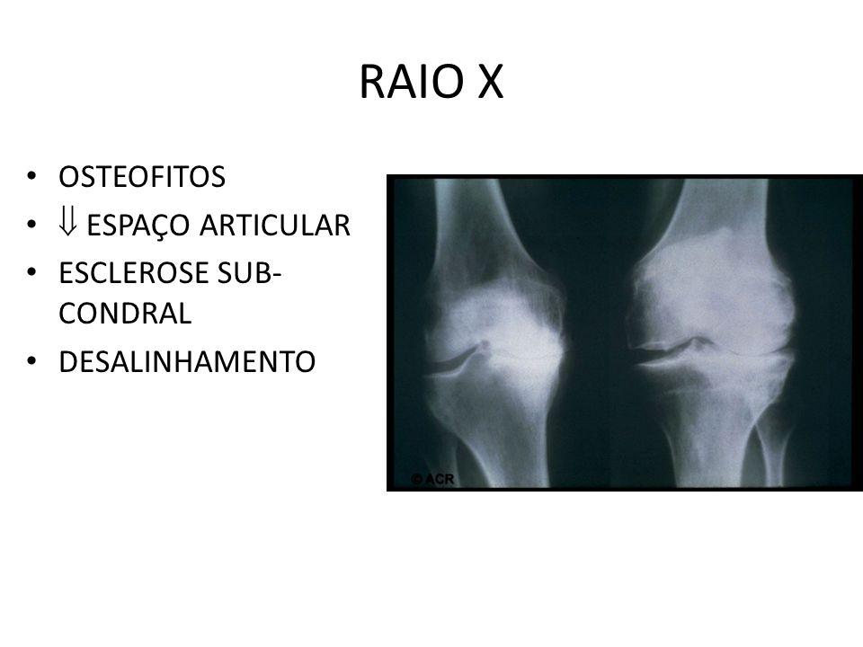 RAIO X OSTEOFITOS  ESPAÇO ARTICULAR ESCLEROSE SUB-CONDRAL