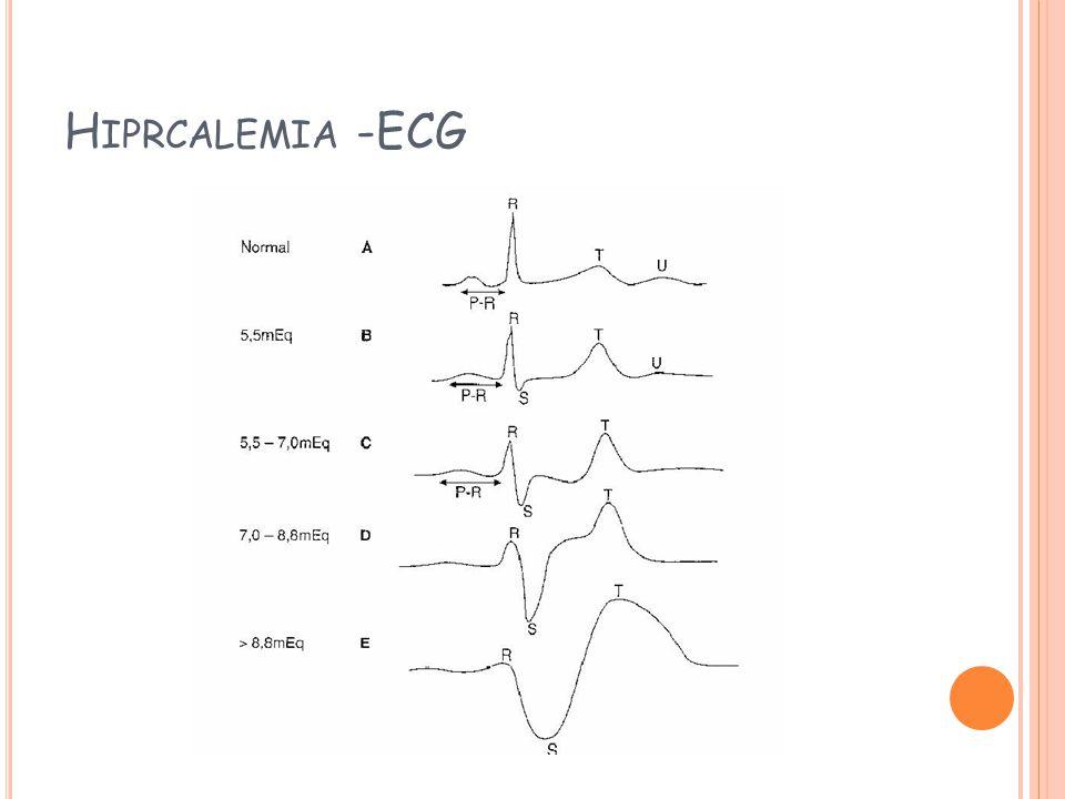 Hiprcalemia -ECG