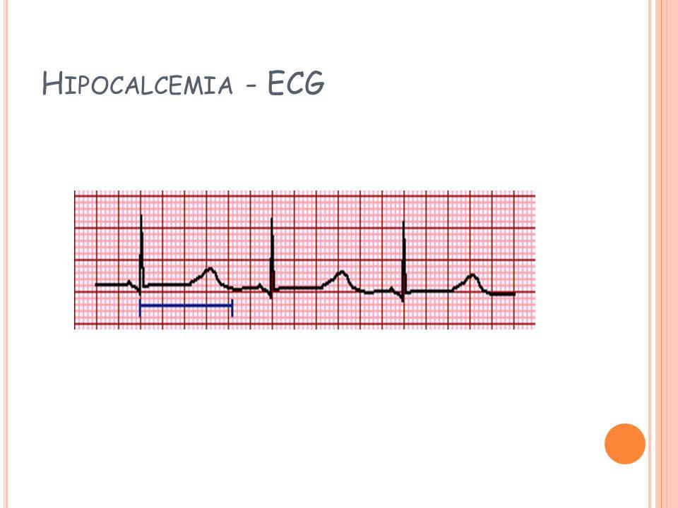 Hipocalcemia - ECG