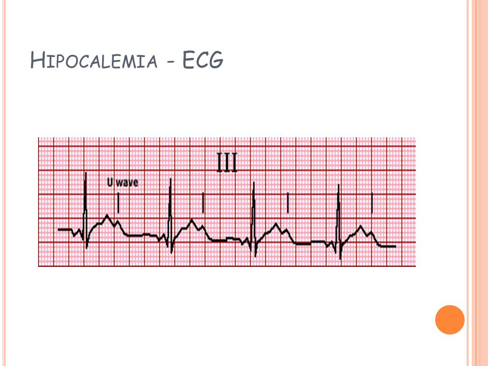 Hipocalemia - ECG