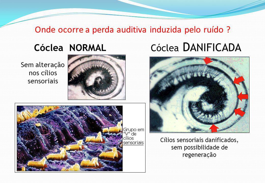Onde ocorre a perda auditiva induzida pelo ruído