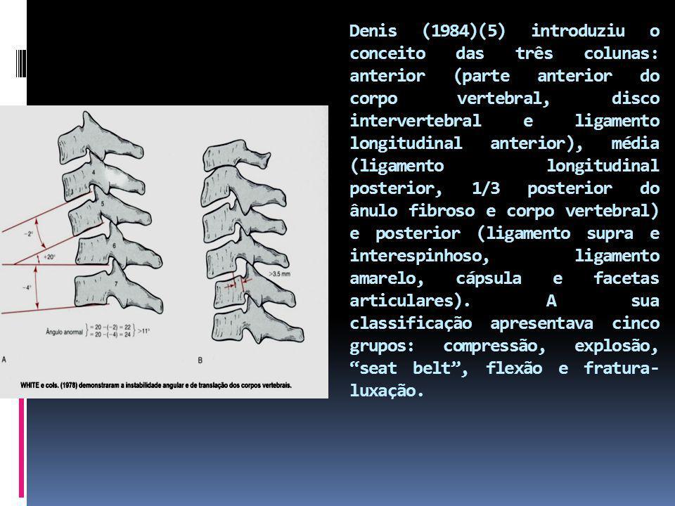 Denis (1984)(5) introduziu o conceito das três colunas: anterior (parte anterior do corpo vertebral, disco intervertebral e ligamento longitudinal anterior), média (ligamento longitudinal posterior, 1/3 posterior do ânulo fibroso e corpo vertebral) e posterior (ligamento supra e interespinhoso, ligamento amarelo, cápsula e facetas articulares).