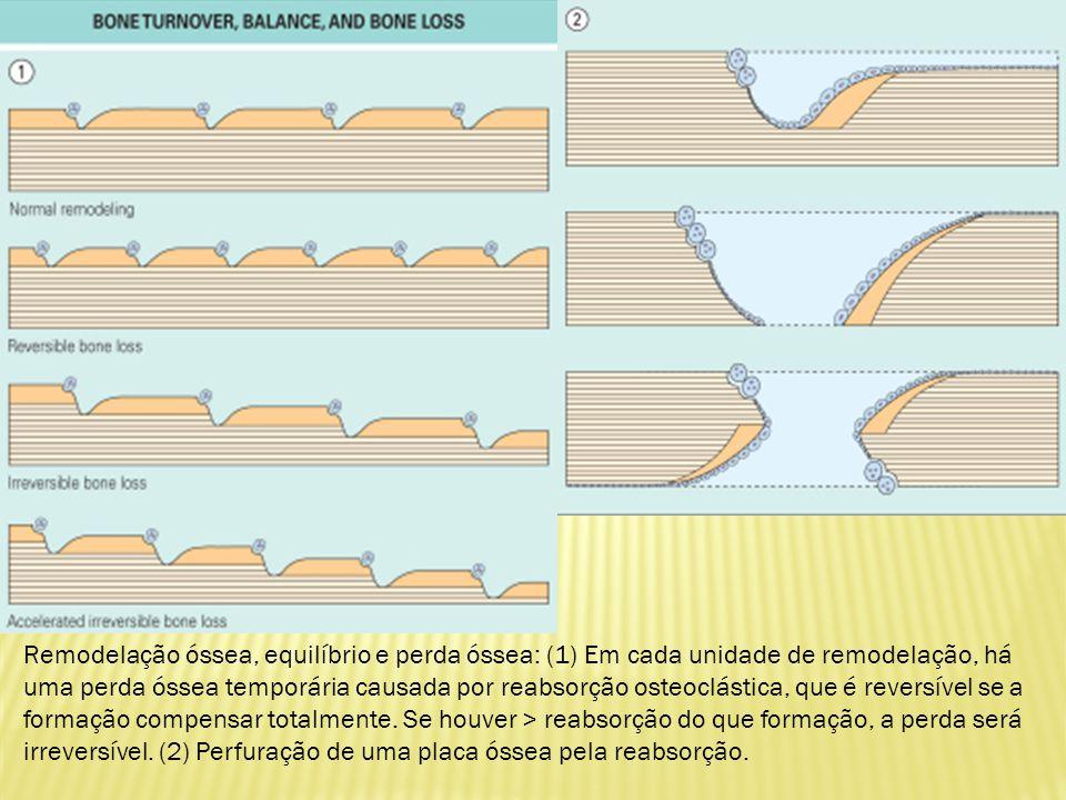 Remodelação óssea, equilíbrio e perda óssea: (1) Em cada unidade de remodelação, há uma perda óssea temporária causada por reabsorção osteoclástica, que é reversível se a formação compensar totalmente.