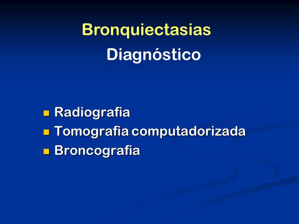 Bronquiectasias Diagnóstico Radiografia Tomografia computadorizada