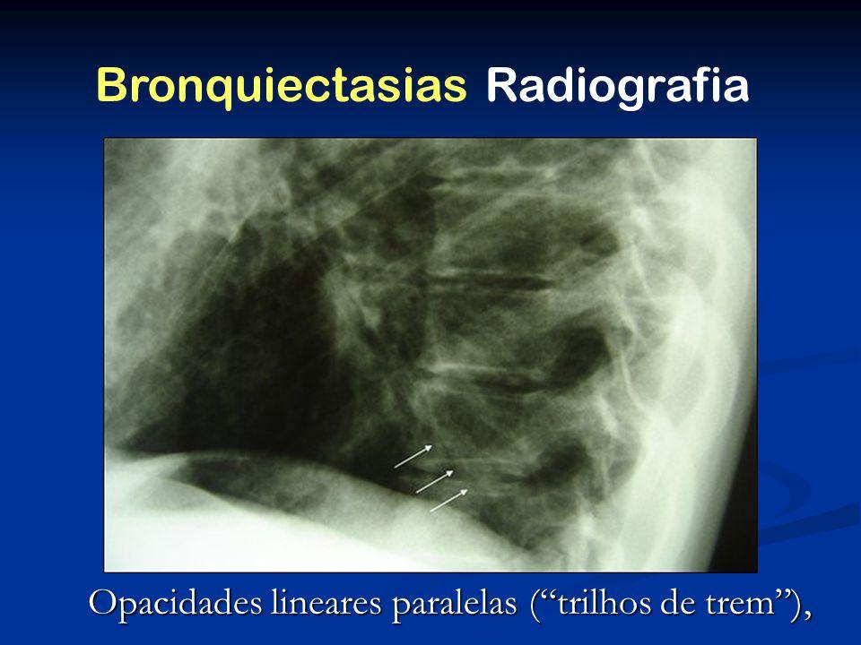 Bronquiectasias Radiografia