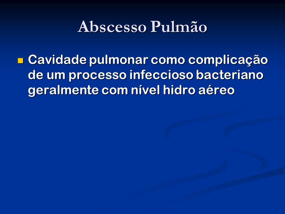 Abscesso Pulmão Cavidade pulmonar como complicação de um processo infeccioso bacteriano geralmente com nível hidro aéreo.
