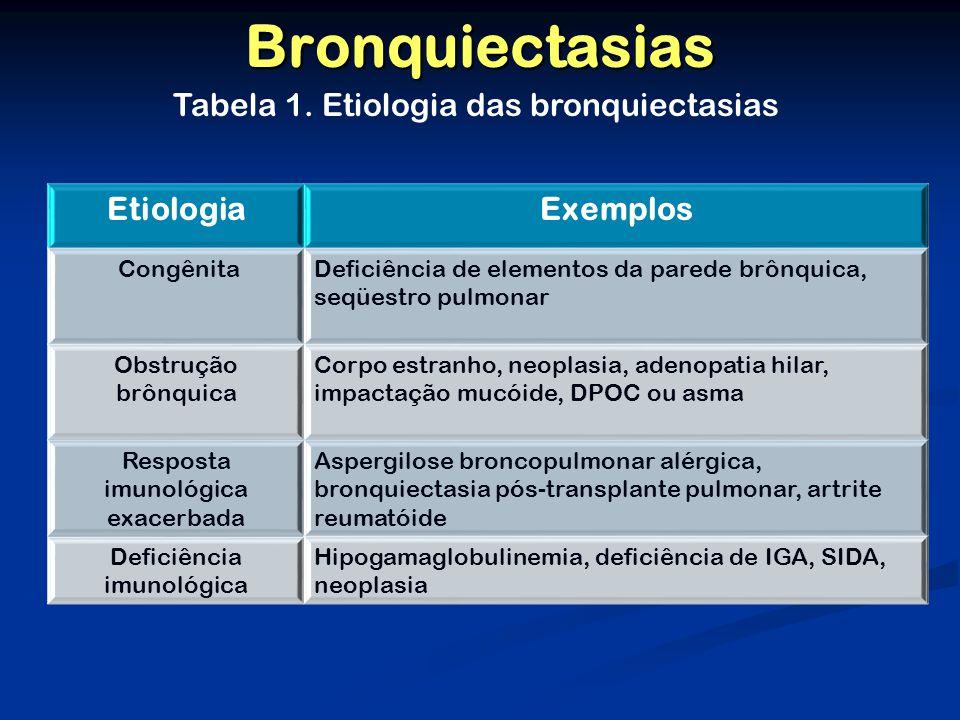 Bronquiectasias Tabela 1. Etiologia das bronquiectasias Etiologia