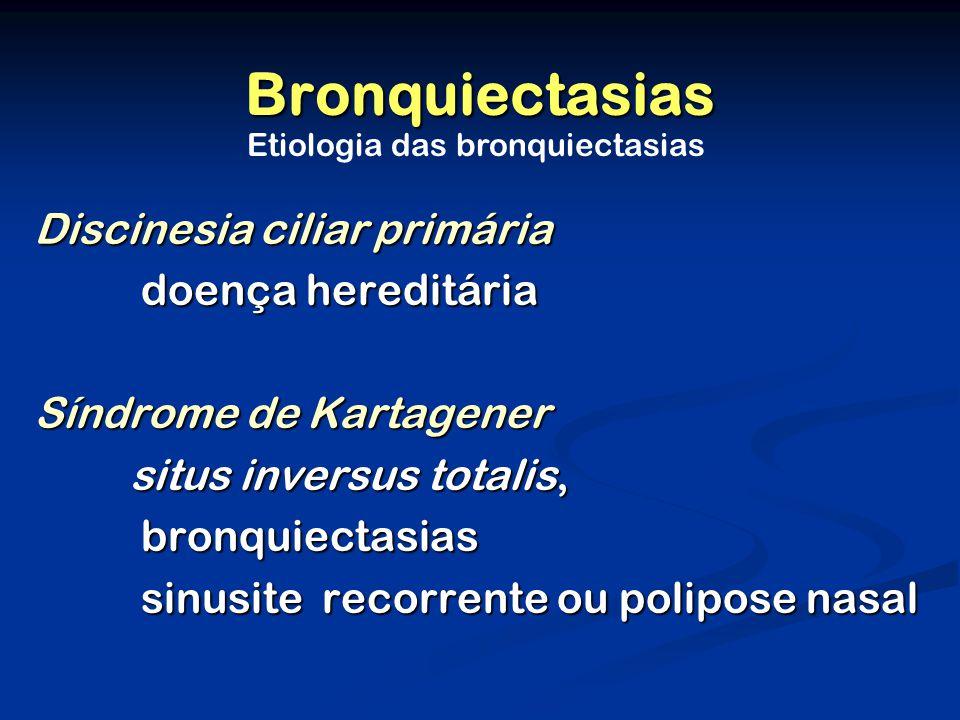Etiologia das bronquiectasias
