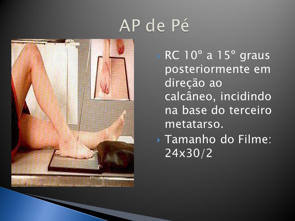 AP de Pé RC 10º a 15º graus posteriormente em direção ao calcâneo, incidindo na base do terceiro metatarso.