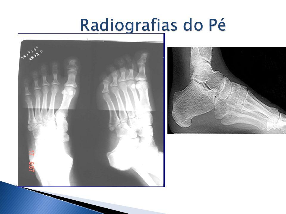 Radiografias do Pé