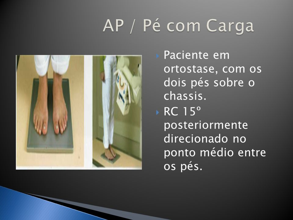 AP / Pé com Carga Paciente em ortostase, com os dois pés sobre o chassis.
