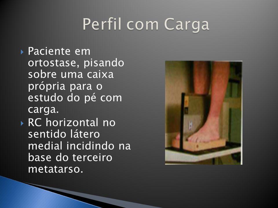 Perfil com Carga Paciente em ortostase, pisando sobre uma caixa própria para o estudo do pé com carga.