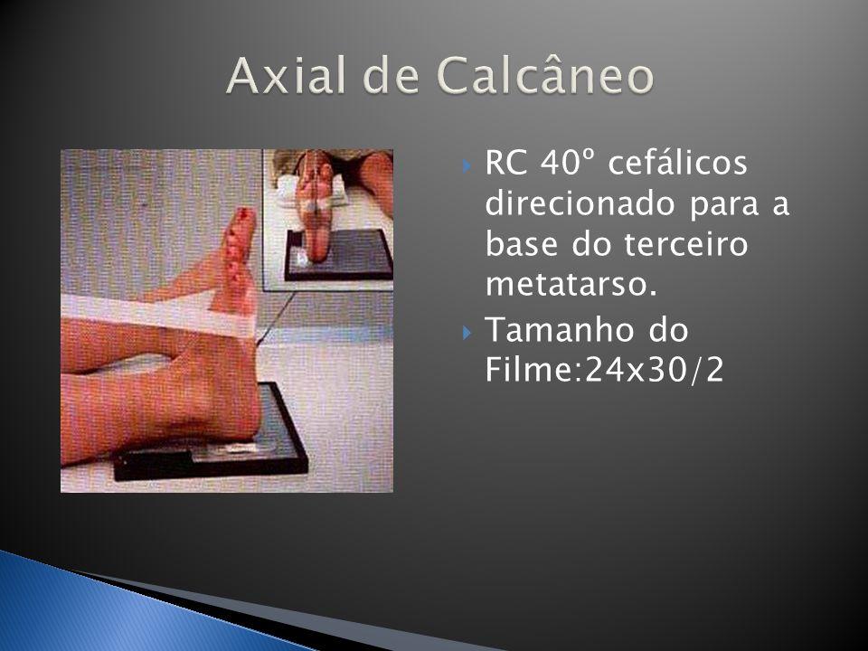 Axial de Calcâneo RC 40º cefálicos direcionado para a base do terceiro metatarso.