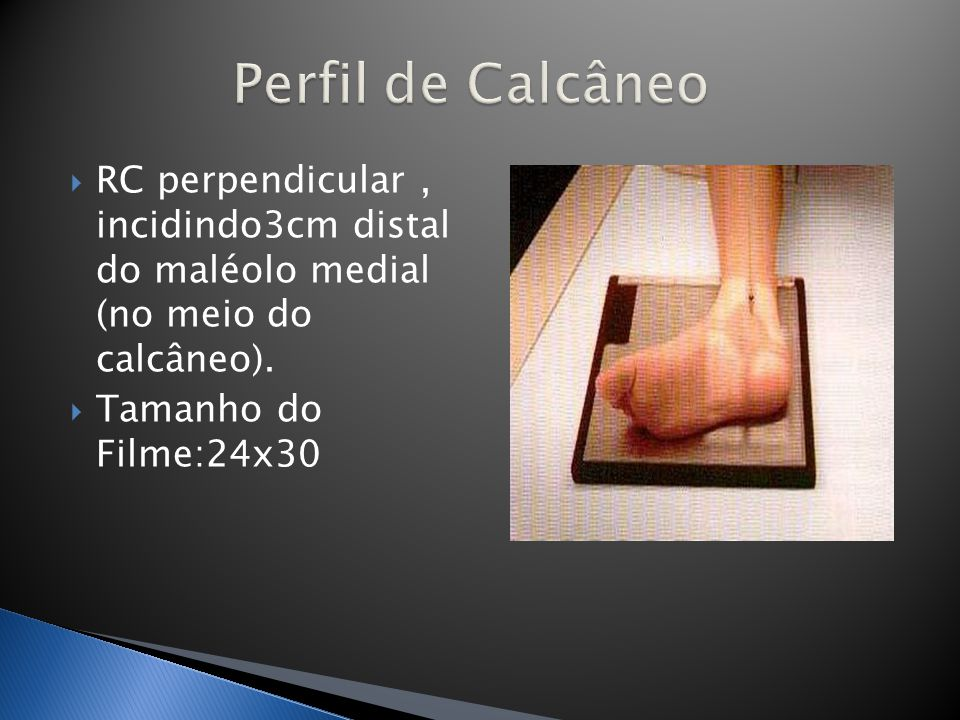 Perfil de Calcâneo RC perpendicular , incidindo3cm distal do maléolo medial (no meio do calcâneo).