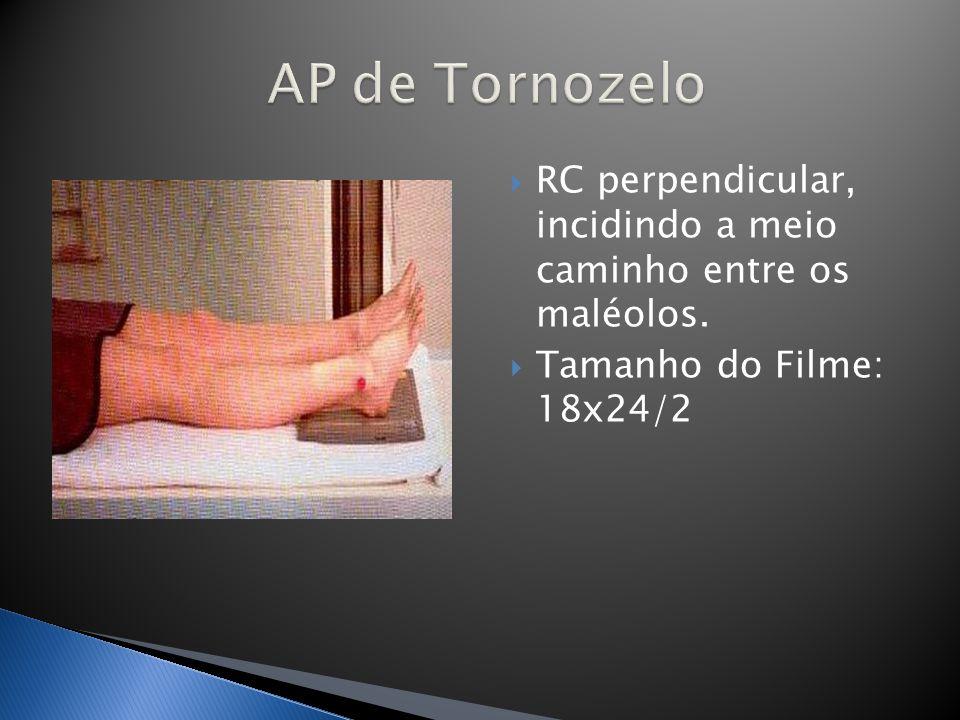 AP de Tornozelo RC perpendicular, incidindo a meio caminho entre os maléolos.