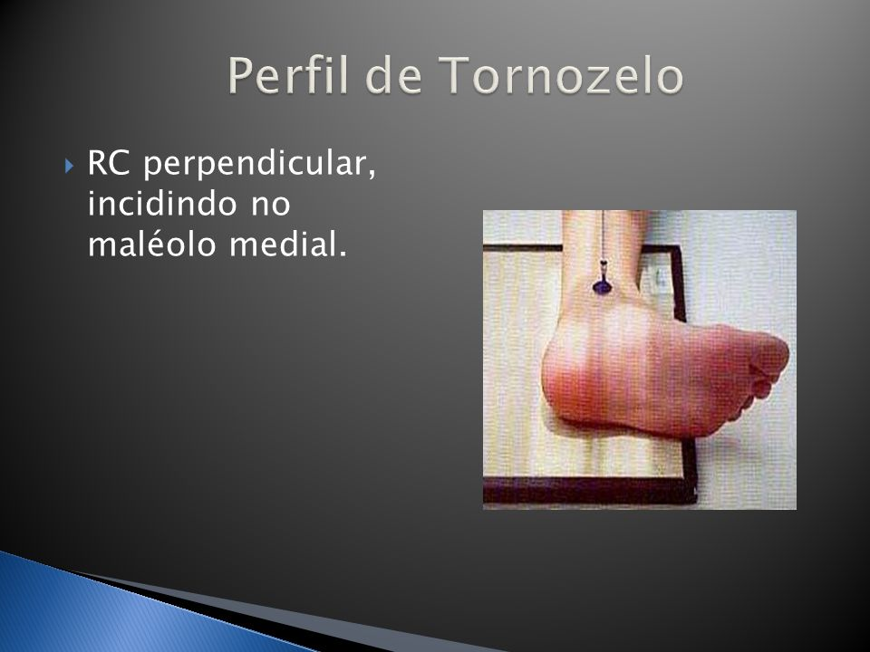 Perfil de Tornozelo RC perpendicular, incidindo no maléolo medial.