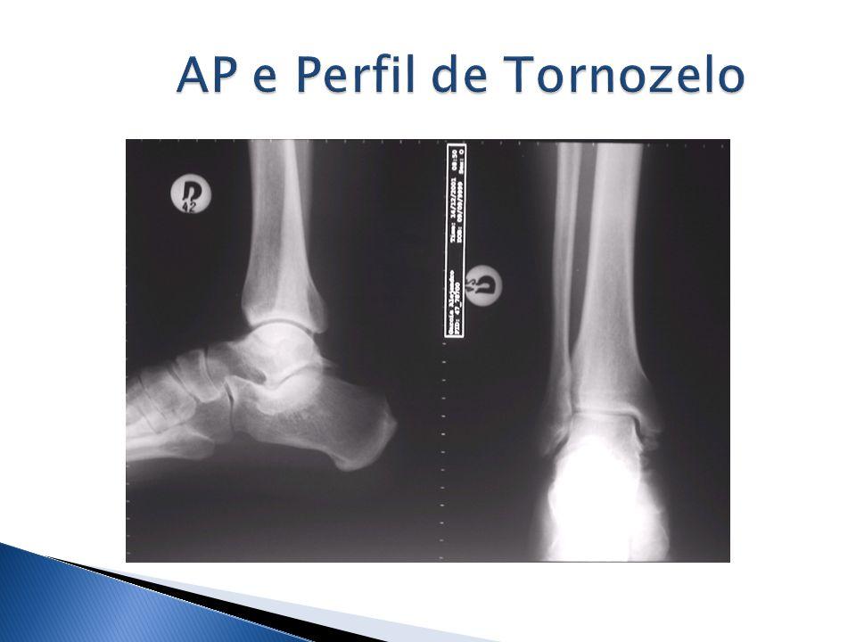 AP e Perfil de Tornozelo