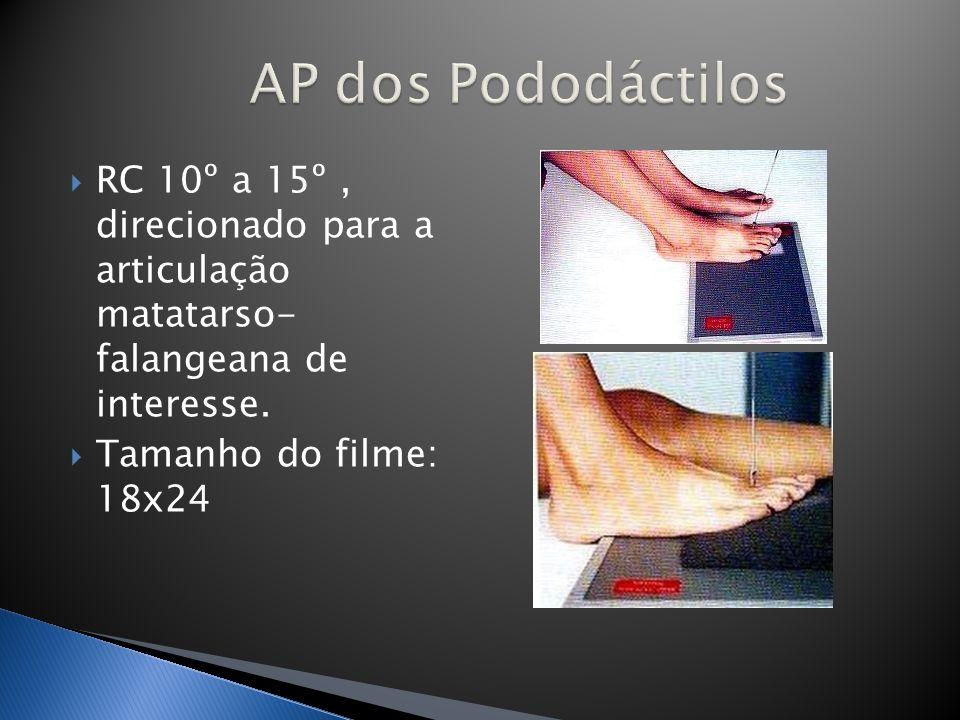 AP dos Pododáctilos RC 10º a 15º , direcionado para a articulação matatarso- falangeana de interesse.