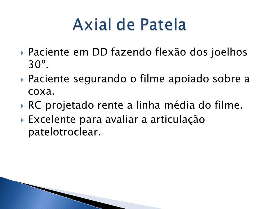Axial de Patela Paciente em DD fazendo flexão dos joelhos 30º.