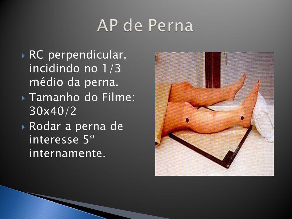 AP de Perna RC perpendicular, incidindo no 1/3 médio da perna.
