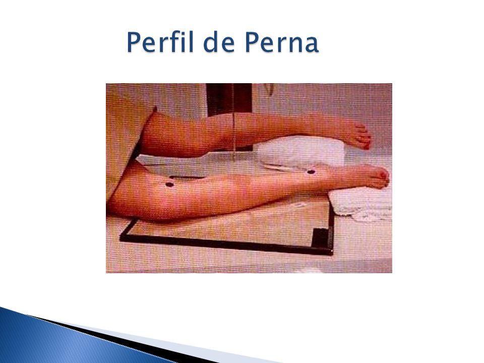 Perfil de Perna